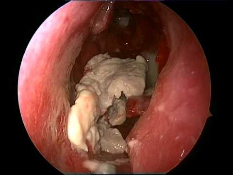 NASAL CHOLESTEATOMA