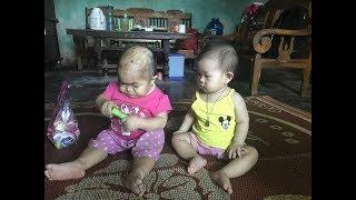 """Kỳ lạ người phụ nữ 27 tuổi mang hình hài """"trẻ lên 2″ ở Thái Nguyên"""
