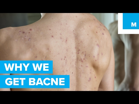 "The Science Behind Why ""Bacne"" Happens to Good People - Sharp Science"