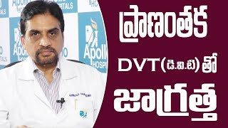 Pulmonary Embolism Treatment & Management || Claret Clot  ||Sumantv Doctors