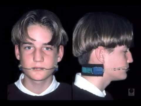 Headgear for Braces - Patient Information | Dentsply Sirona