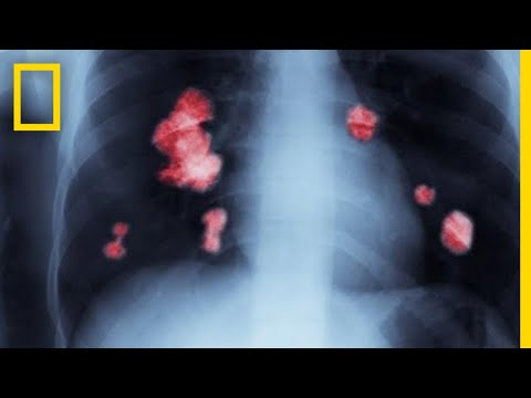 Cancer 101 | National Geographic