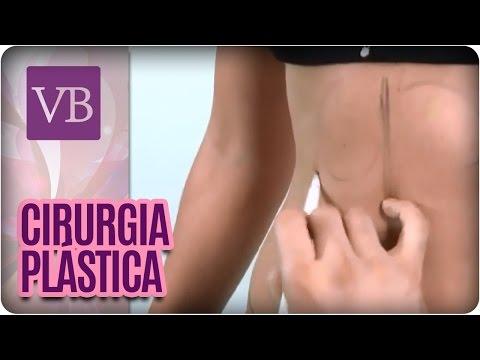 As cirurgias plásticas mais famosas no Brasil - Você Bonita (12/10/16)