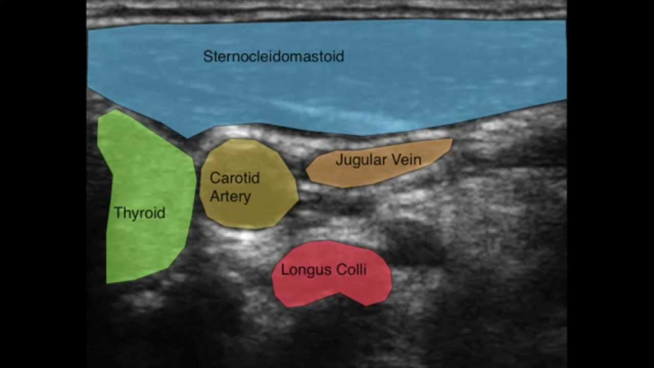 Ultrasound Of The Deep Cervical Neck Flexors Youtube