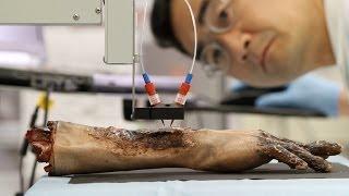 Kunstorgane Aus Dem 3D-Drucker - Kunst-Vagina Erfolgreich Implantiert