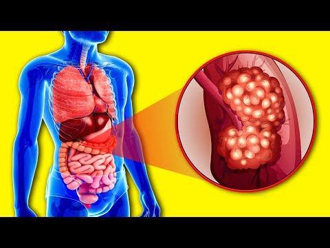Врачи назвали 3 продукта которые Уничтожают Раковые Клетки! Еда против Онкологии