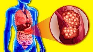 постер к видео Врачи назвали 3 продукта которые Уничтожают Раковые Клетки! Еда против Онкологии