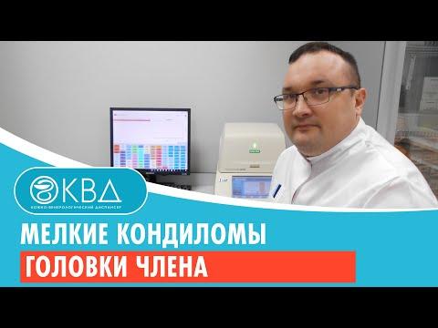 Мелкие кондиломы головки члена. Клинический случай №15
