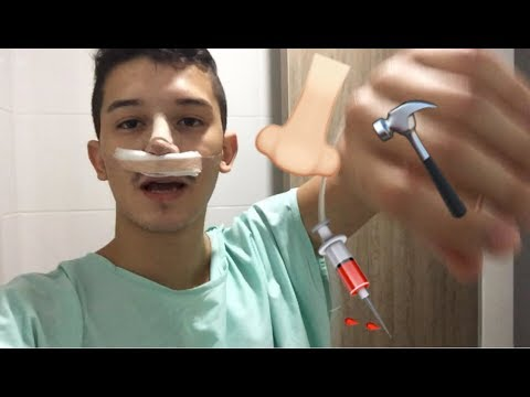 Nose job in COLOMBIA vlog