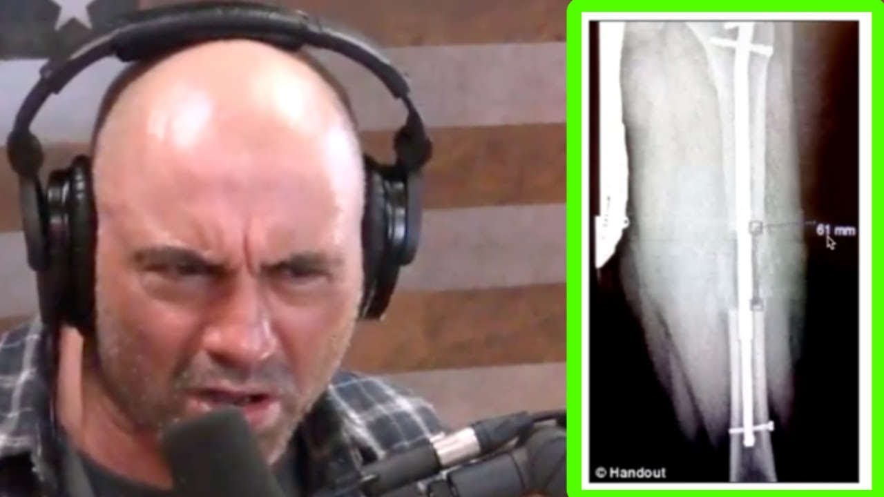 Joe Rogan FREAKS OUT Over Brutal Leg-Lengthening Surgery!