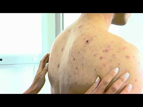 Acne NYC - (212) 644-6454 - NYC Cystic Acne Back - Pimples ...