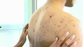 Repeat youtube video Acne NYC - (212) 644-6454 - NYC Cystic Acne Back - Pimples NYC - Acne Face NYC
