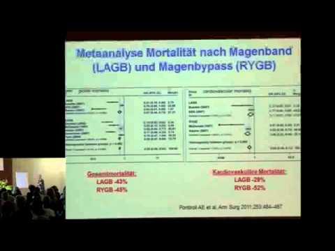 Bariatrische Chirurgie – vorher und nachher: Prof. Dr. med. Peter Wiesli, Frauenfeld