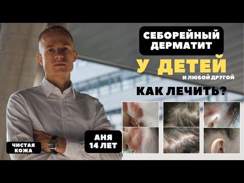 Лечение дерматита у детей. Пример лечения себорейного дерматита на голове (перхоть), за, и над ушами