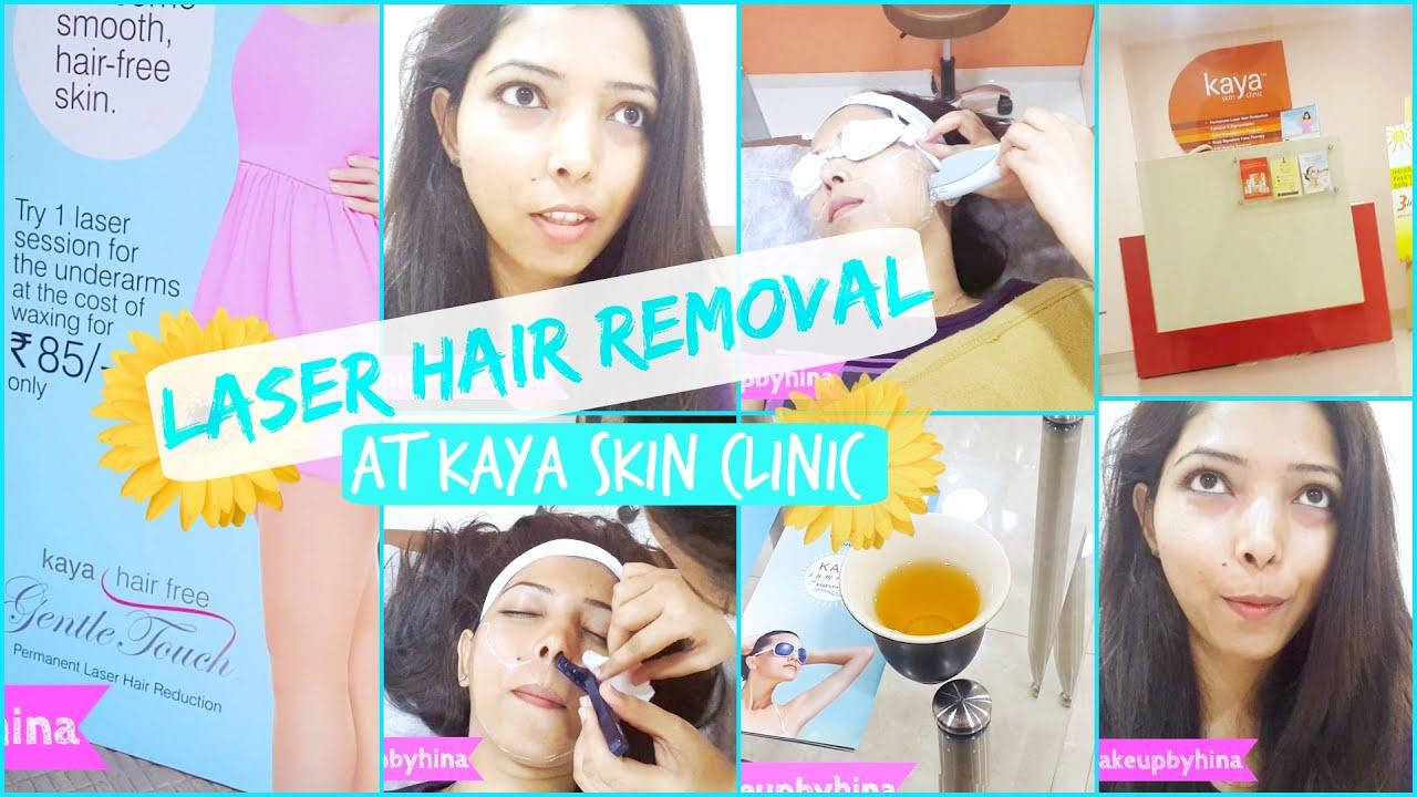 VLOG LASER HAIR REMOVAL FACE AT KAYA SKIN CLINIC SESSION - Laser hair removal face