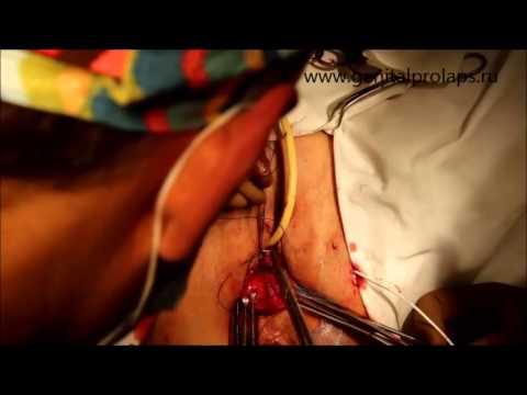 Операция при опущении матки - YouTube