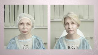 видео Мезотерапия - это сенсация косметологии