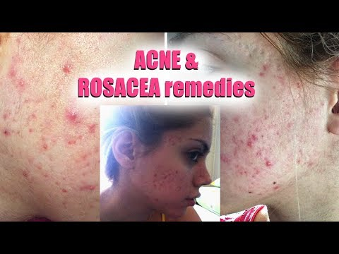 HOW TO GET RID OF ACNE AND ROSACEA || Pershii