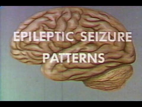 epileptic seizure patterns - medical training 1963