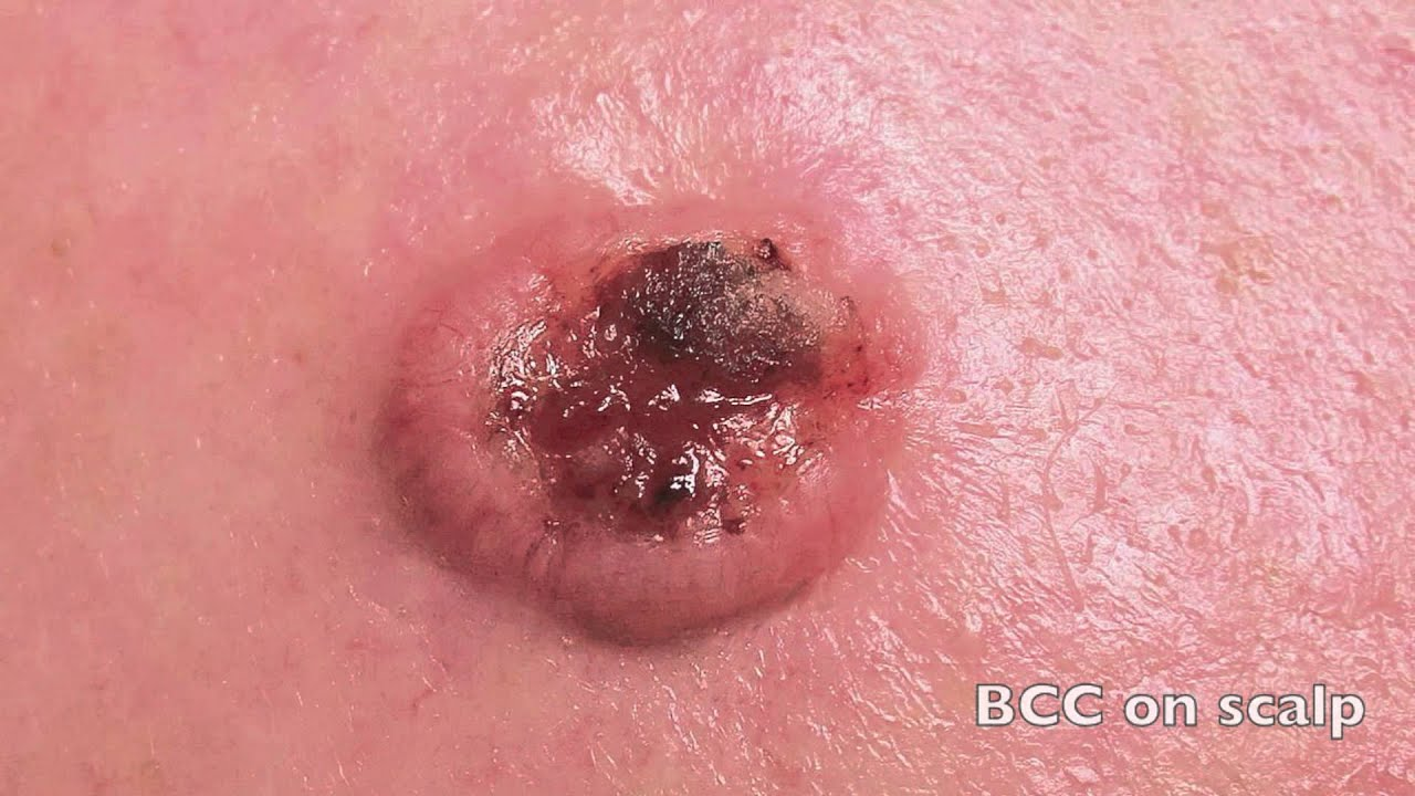 Basal Cell Carcinoma—The Good Skin Cancer