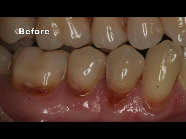 Laser Gumline Fillings
