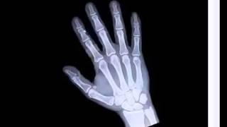 Mãos pés nas e de total ossos