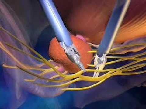 da Vinci Prostatectomy Patient Video