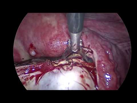 laparoscopic-excision-of-large-ovarian-cyst-left-&-dermoid-cyst-right