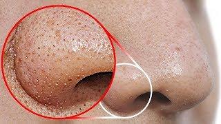 Haz esto para remover los puntos negros de tu nariz thumbnail