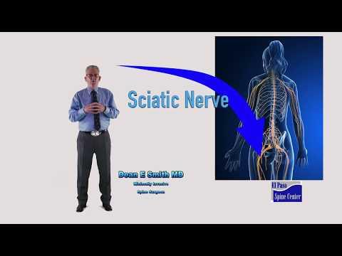 Best Video About Degenerative L45 Spondylolisthesis