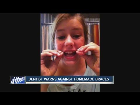 DIY braces - a dangerous trend