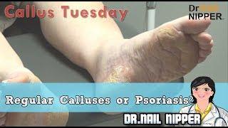Regular Calluses or Psoriasis #14 - Callus Tuesday