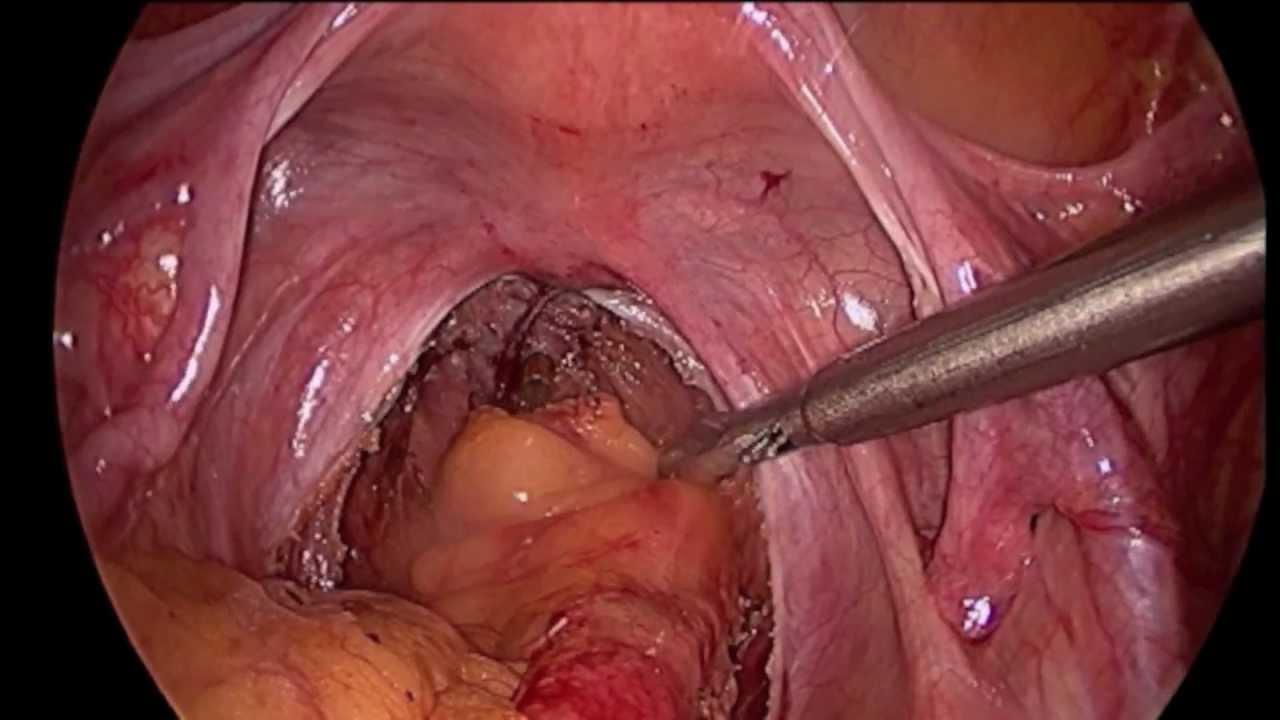 Symptoms anal cancer