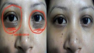 Get rid of eyes dark circles naturally