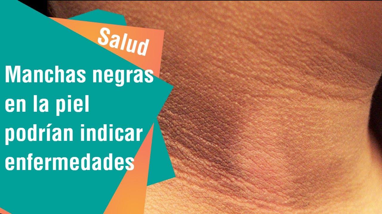 Mancha negra en el cuello uterino causas