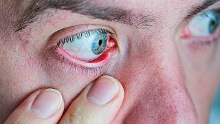 Dry Eyes? Here's What They Reveal About Your Health