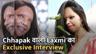 Laxmi Agarwal - 'Acid Attack के बाद जब पहली बार शीशे में देखा' | Exclusive Interview |Aaj Savere