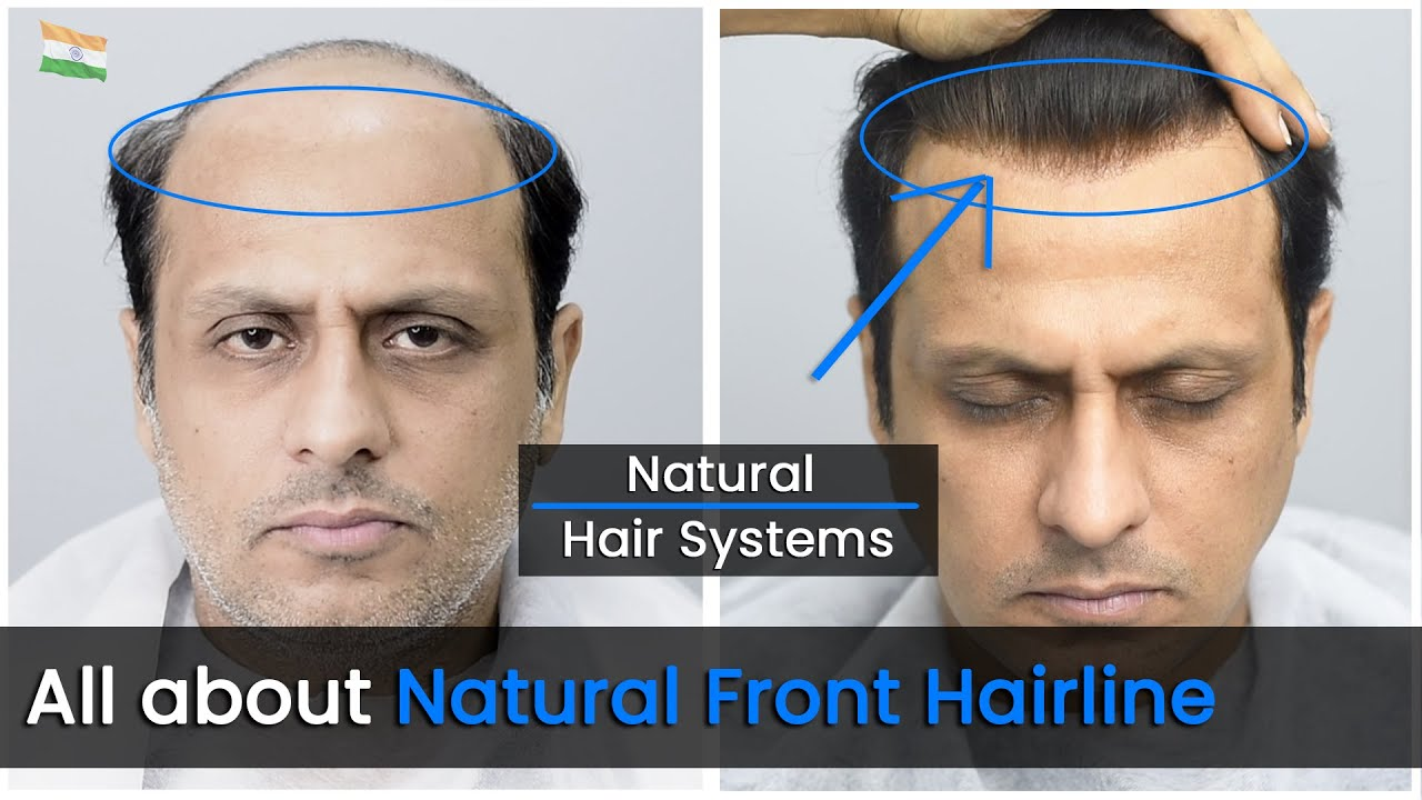 About Natural Hairline in Hair Patch | Non Surgical Hair Replacement/Hair Wigs For Men