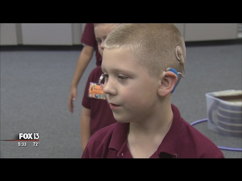 Years later, child's cochlear implants are his 'ears'