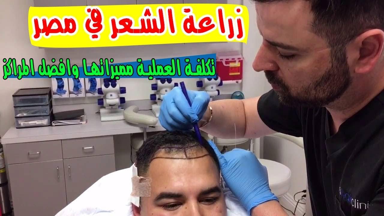 زراعة الشعر في مصر تكلفة العملية مميزاتها وافضل المراكز التخصصية Youtube