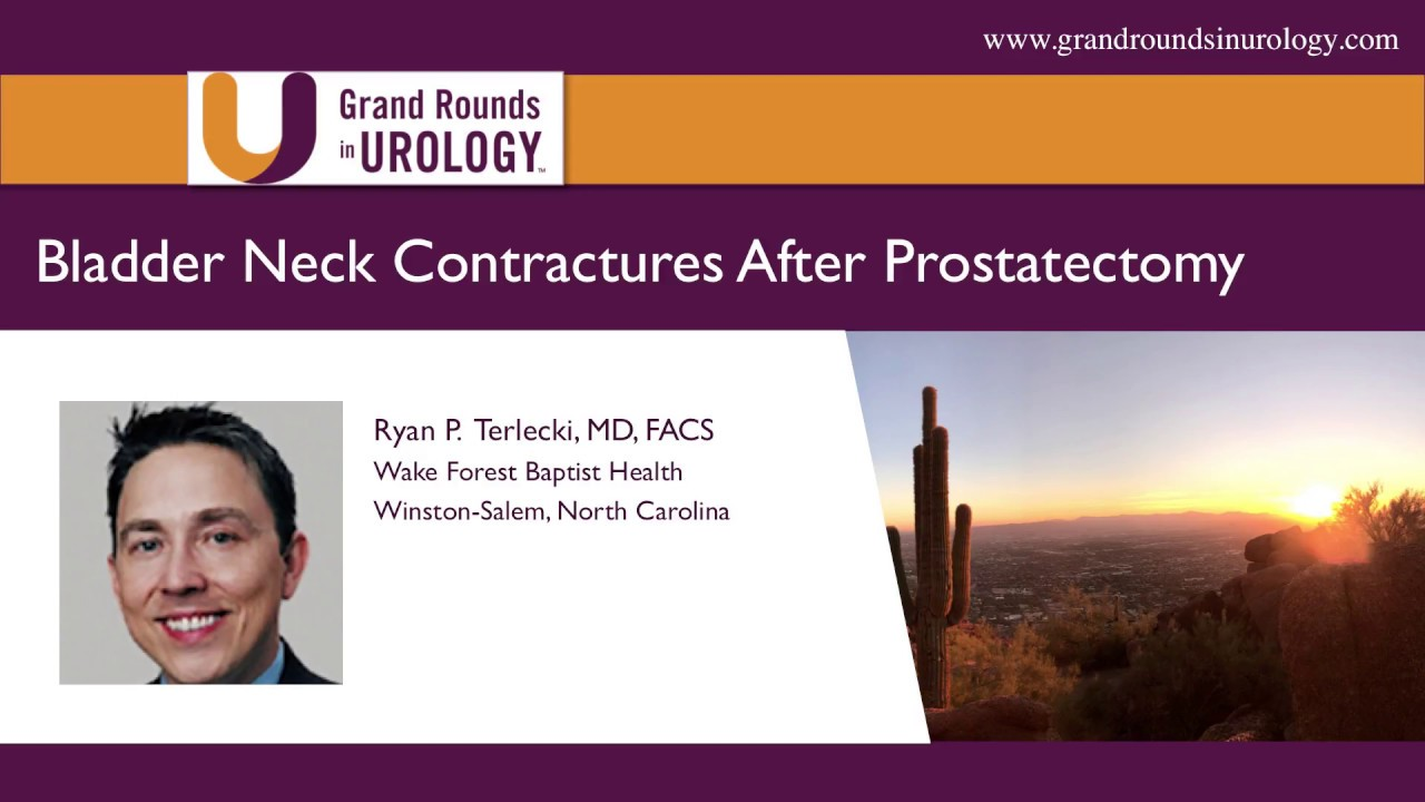 Ryan P Terlecki Bladder Neck Contractures After Prostatectomy