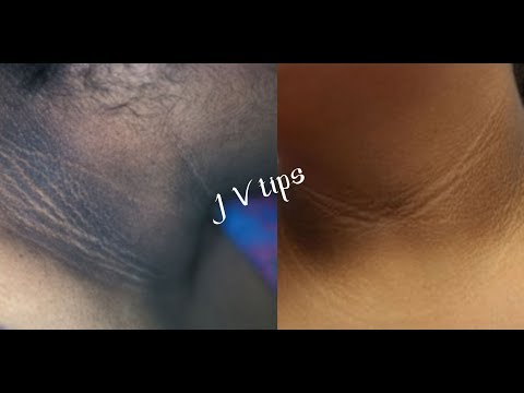 YOU CAN SIMPLY REMOVE BLACK NECK EASILY AT HOME