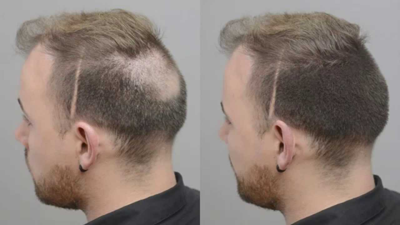 how to stop balding on top of head