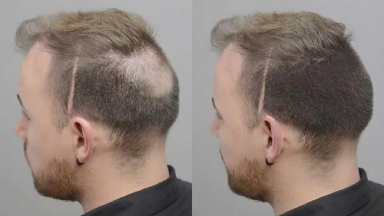 bald spot quick fix with forila hair fibers