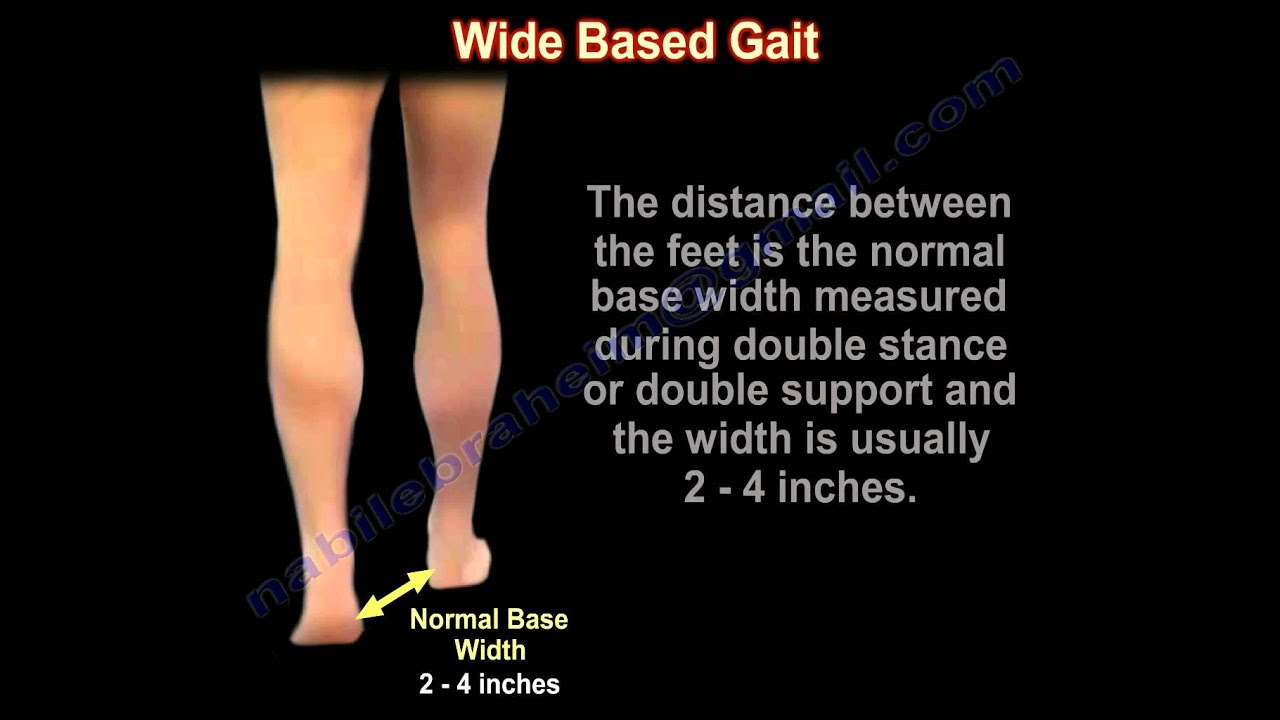 Wide Based Gait Myelopathy Gait - Everything You Need To ...