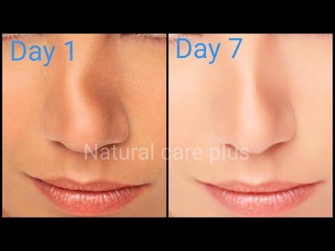 7 दिनों में मोटी और टेडी नाक को सीधा करे | Make beautiful nose with a simple remedie