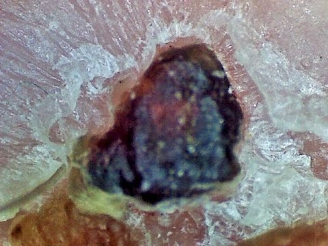 Huge Scab Picked Off Under Microscope