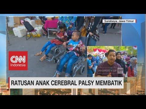 ratusan-anak-cerebral-palsy-ikut-membatik-meriahkan-world-cerebral-palsy-day-2018