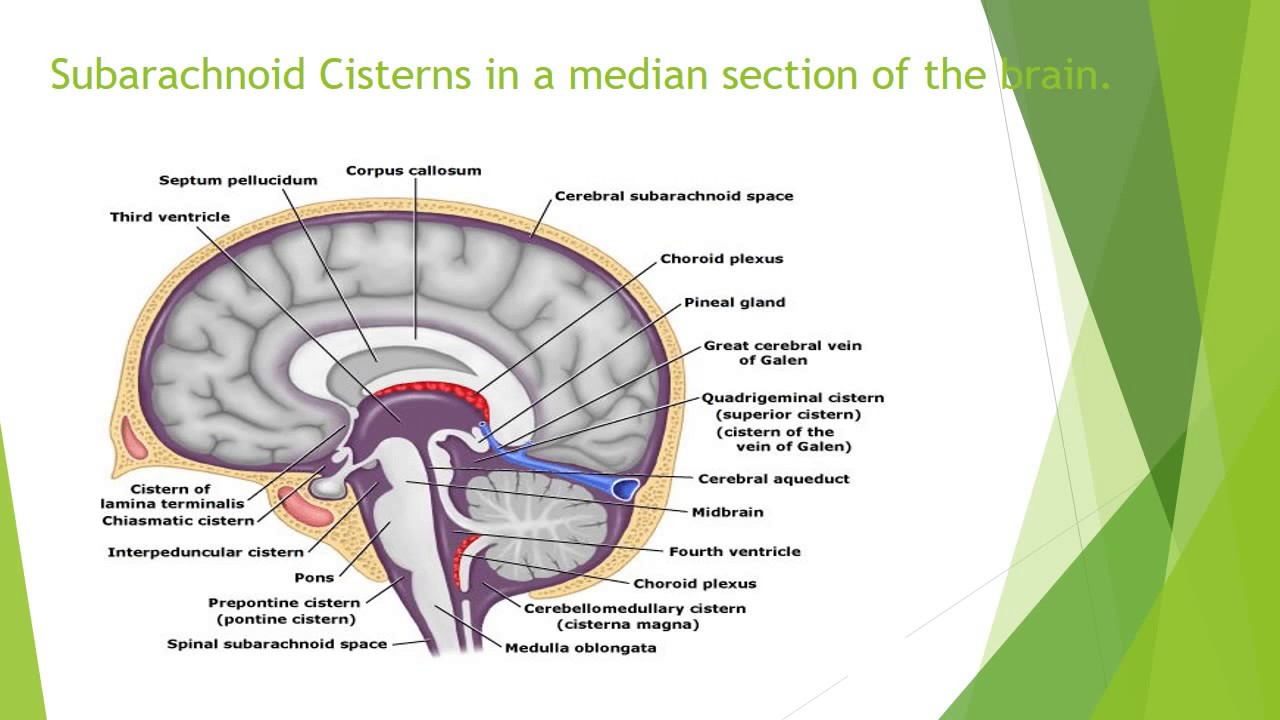 Subarachnoid Cisterns – Anatomy - YouTube