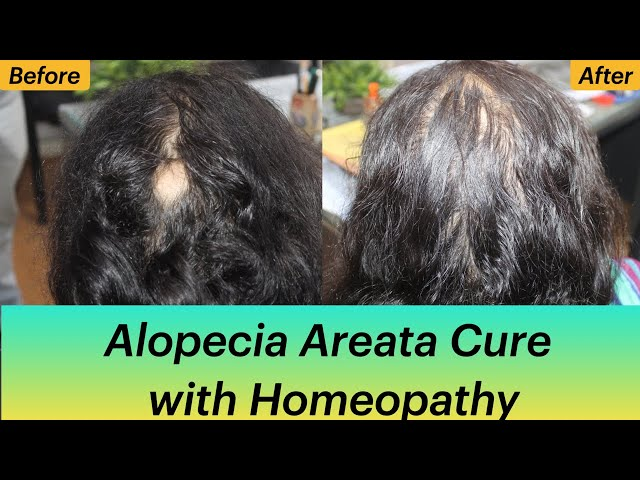 Cure of Alopecia Areata with Homeopathy Dr Ravi Singh